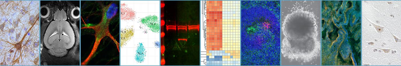 Neuro-D Lab Leiden
